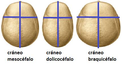 Cráneo mesocéfalo, dolicocéfalo y braquicéfalo.