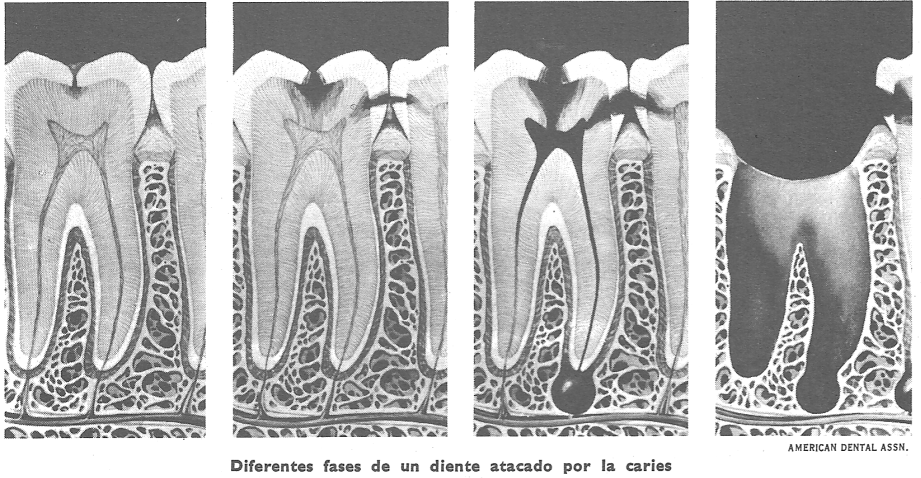 Dientes humanos: caries dental